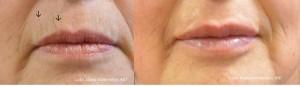 Lip Injections Puyallup WA