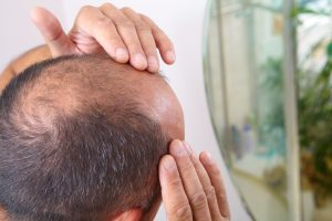 bald man considering PRP hair restoration - Concordia Star Medical Aesthetics